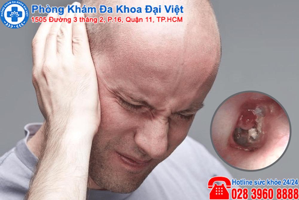 Viêm tai giữa mãn tính có cholesteatoma