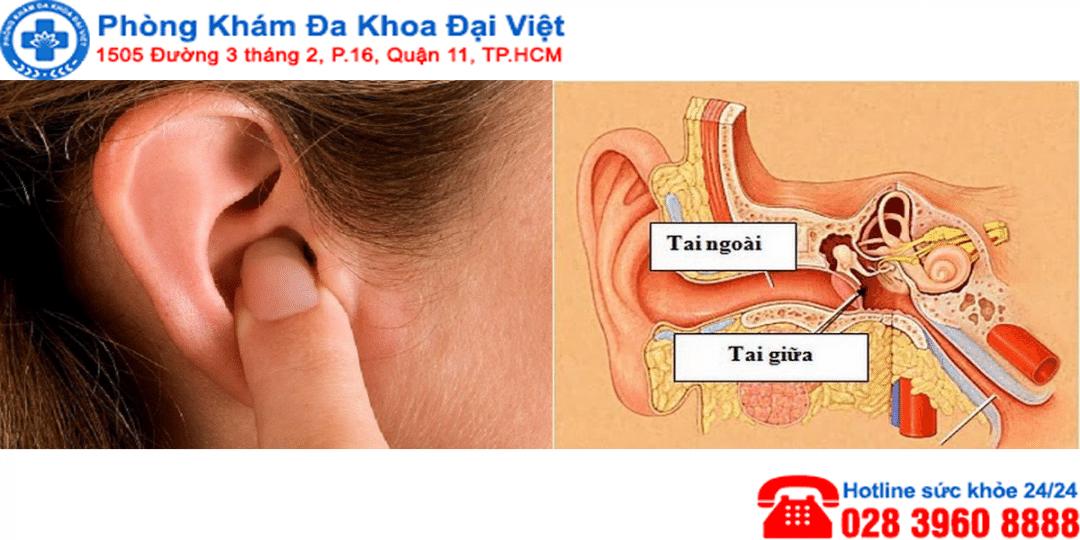 Bệnh viêm tai ngoài và cách điều trị