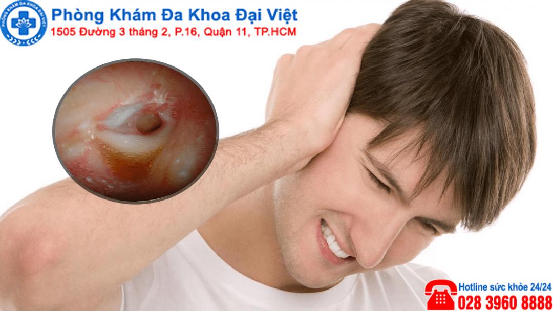 Triệu chứng viêm tai giữa có mủ