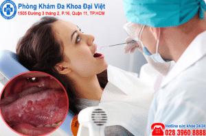 Triệu chứng ung thư lưỡi