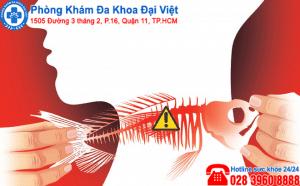 hốc xương cá , nguy hiểm của việc hốc xương cá
