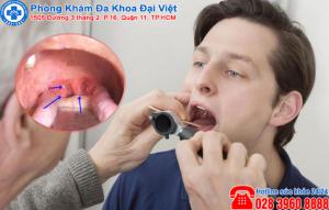 Viêm họng lưỡi gà là bệnh như thế nào ?