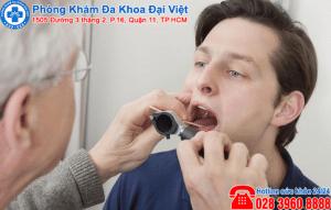 Loét họng : nguyên nhân và cách điều trị