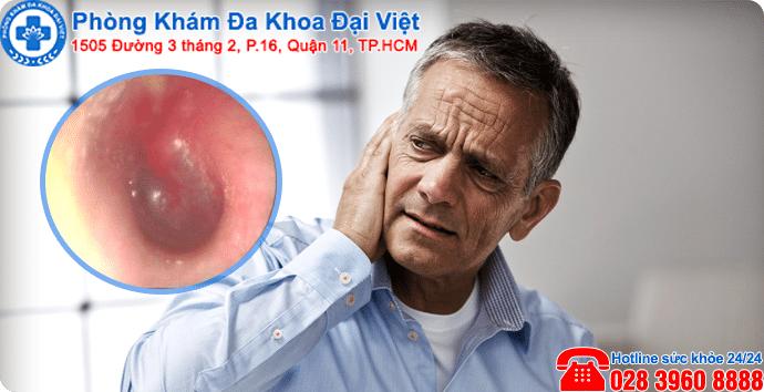 Viêm tai thanh dịch là bệnh lý gì ?