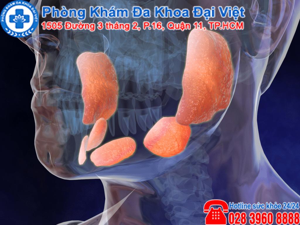 Sự khác biệt giữa viêm tuyến mang tai và quai bị