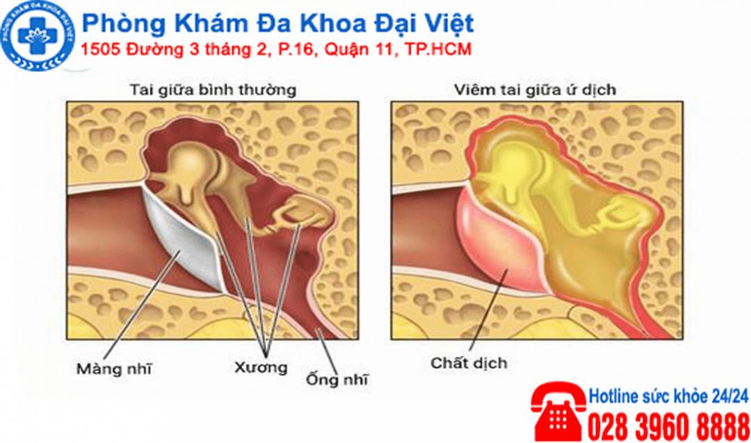 Viêm tai ứ dịch biến chứng và liệu pháp điều trị