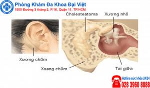 Bệnh lý : Viêm tai xương chũm