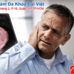 viêm sụn vành tai là bệnh gì