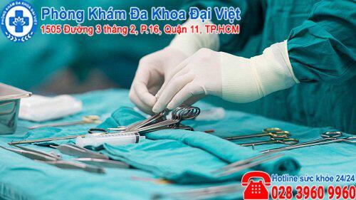 phẫu thuật bap quy đầu