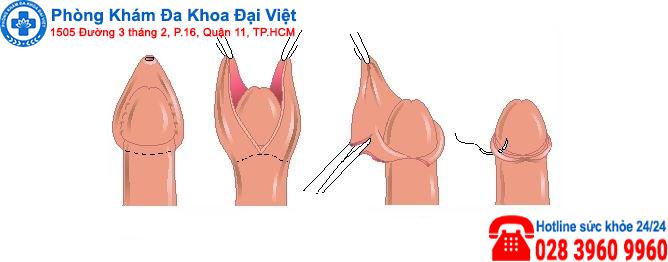 Một số phương pháp điều trị rách da bao quy đầu