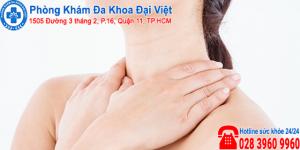 5 biểu hiện viêm họng cần lưu ý