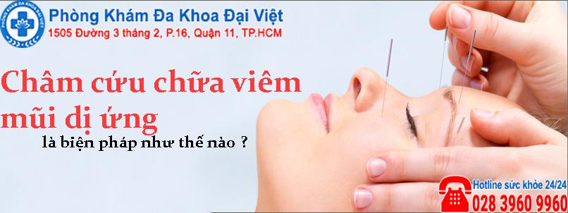 Châm cứu chữa viêm mũi dị ứng an toàn