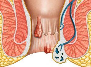 Điểm khám chữa bệnh trĩ quận 7 uy tín, chất lượng nhất hiện nay